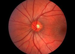 optic nerve retina
